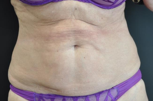 abdomen après